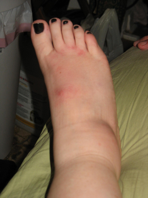 Hot weather & swollen limbs (4 Ways to reduce swelling in the Summer)